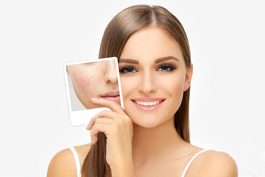Best Anti-Acne and Pimple Creams : Steer Clear