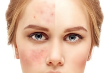 What Is Skin Barrier And How To Repair It