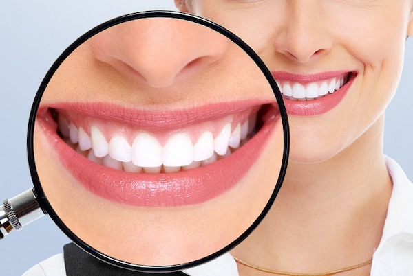Best Teeth Whitening Toothpastes