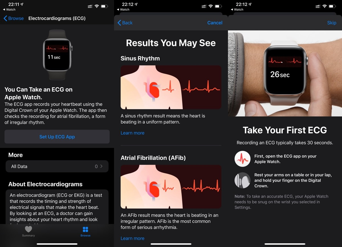 watchOS 6 Update Brings A-Fib Detection and ECG App to Apple Watch Users in India