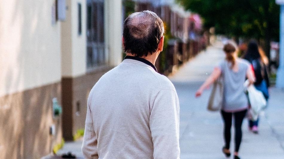 झड़ते बालों की समस्या होगी खत्म! जापान की रिसर्च में दावा