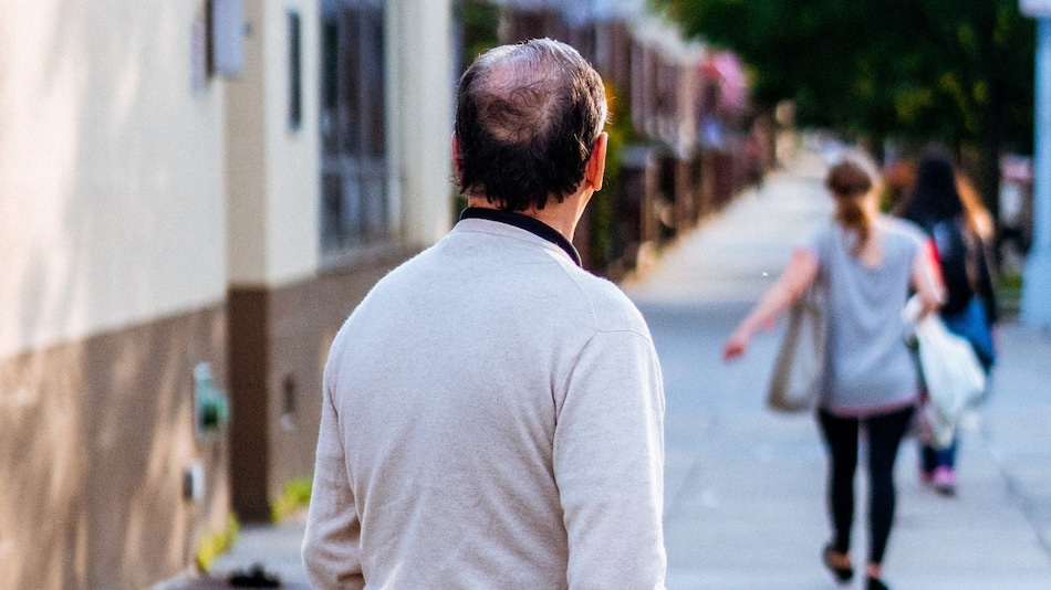 Suffering From Hair Loss or Baldness? New Study May Have Solution for You