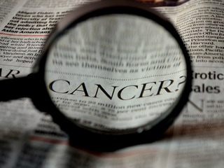 AI Test Pinpoints More Cancers Targeted by Astra, Glaxo Drugs