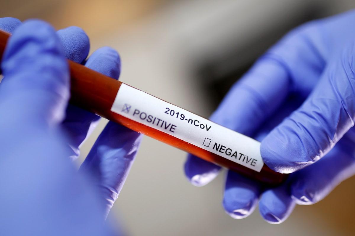 Coronavirus: Researchers Eye Tech Wearables as Early Warning System