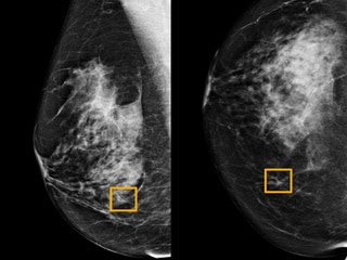 Google AI System Could Aid Breast Cancer Detection, Study Finds