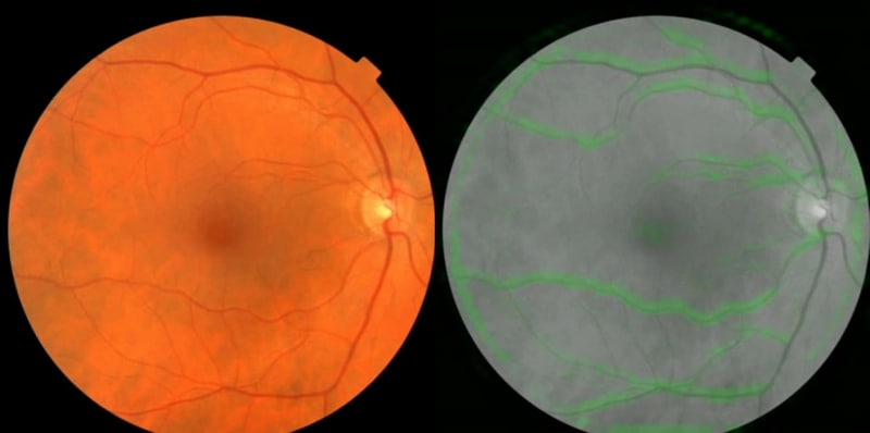 Google, Verily Life Sciences Use AI to Scan Eyes for Heart Risk