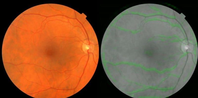 google heart disease eyes wp full 1519104615324 Google