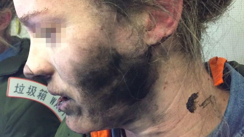 Woman Suffers Burns to Face, Hands When Her Headphones Explode Mid-Flight