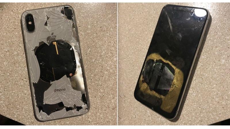 An iPhone X exploded in pocket of Australian man that caused him second-degree burns after which he sued Apple.