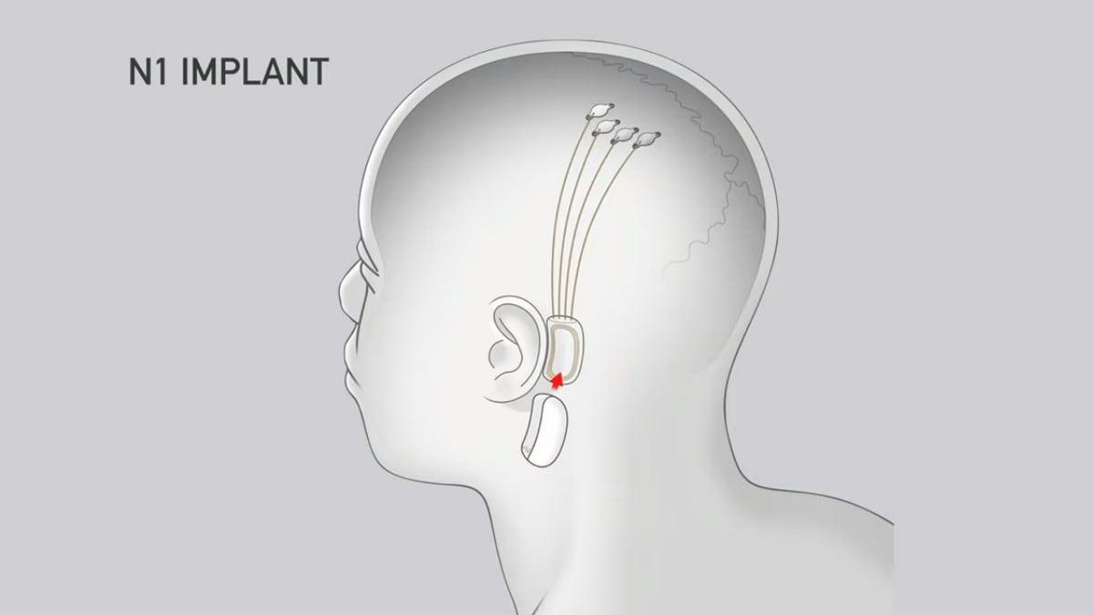 n1 implant neuralink n1