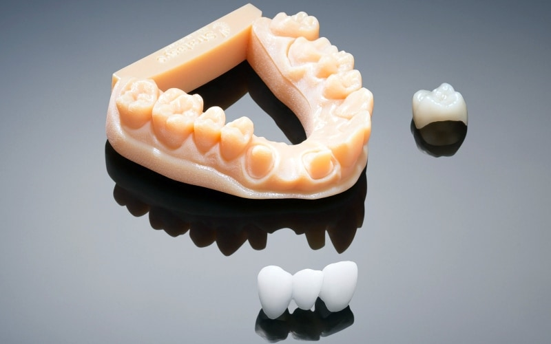 How 3d Printers Are Revolutionising Dentistry In India